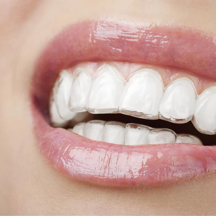 Invisalign at Grider Orthodontics